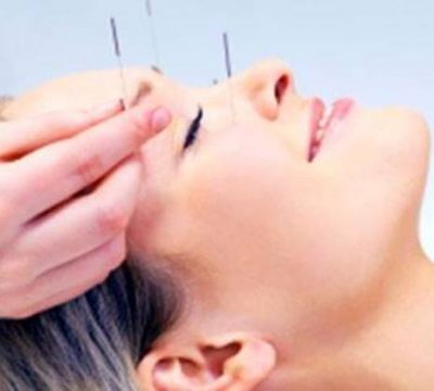 Facial Acupuncture by Rebekah Miller, Tian Chao Herbs and ...